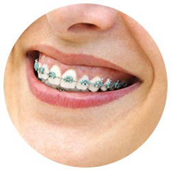 Conventional Metal Braces