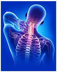 Cervical spondylosis involved the wear and tear of cartilage in your neck