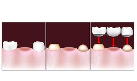 illustration of crowns implant