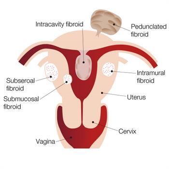 Uterine Fibroids in female reproductive system