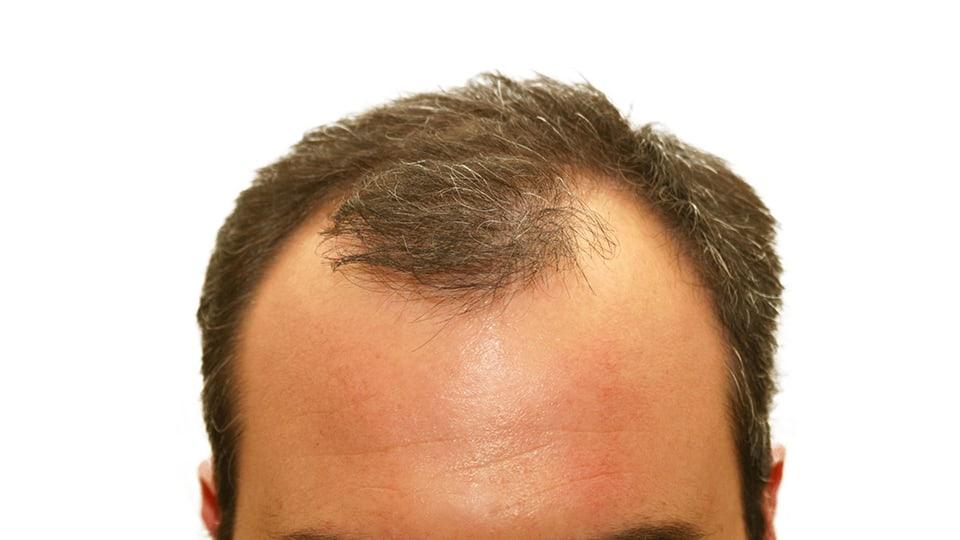 grey-hair-loss