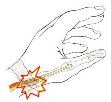 dequervain-39-s-tendinitis-or-tenosynovitis
