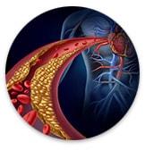 TCM Cardio-Health